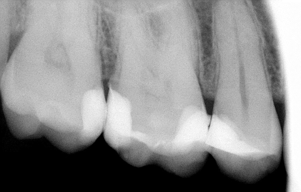 Как отбелить зубы крысе